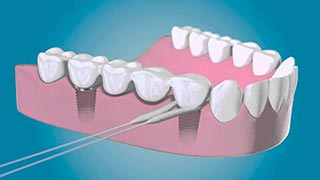 Implantes y cirugía dental