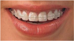 Ortodoncia, salud y estética