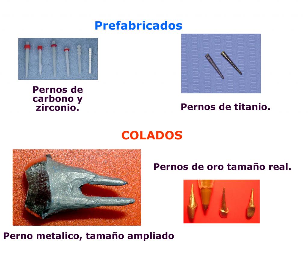 Reconstrucción, Pin, Perno e Inscrustación
