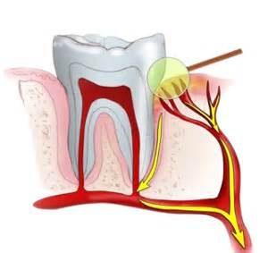 pieza-dental-paquete-vascular