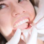5 motivos para ponerse ortodoncia