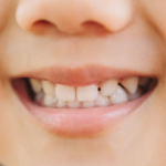 6 motivos para cuidar los dientes de leche