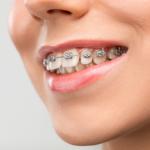 Ortodoncia durante el confinamiento