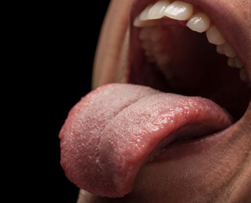La lengua covid