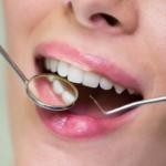 Razones por las que hay que ir al dentista