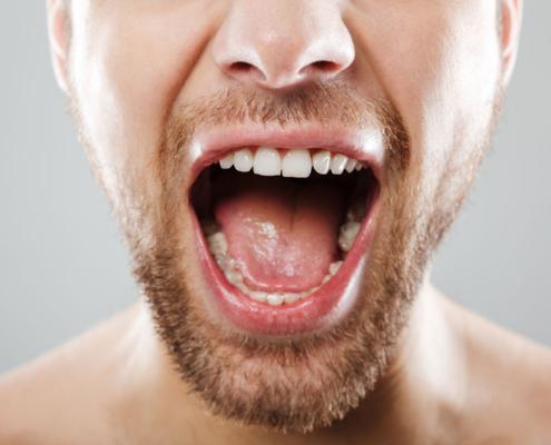 6 Pautas para prevenir el cáncer oral
